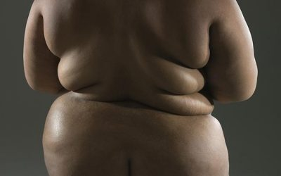 Health Experts: Obesity Fuelling Vastly Higher COVID Death Toll