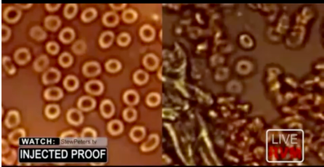 Are they trying to kill us? Healthy blood cells before VAX & after VAX